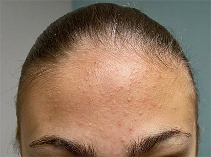 Como limpar poros em uma cara de pontos pretos de gordura e lugares